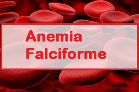 Anemia-falciforme.